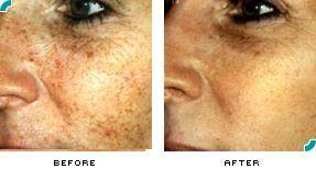 Will the dark brown spots that appear after Fotofacial/IPL