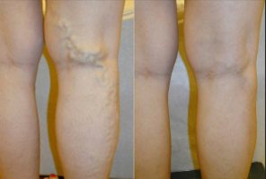 Will Endovenous Laser Ablation Really Destroy The Greater