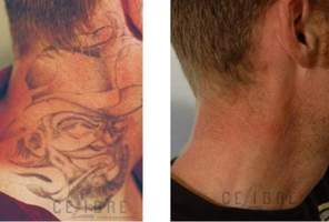 Will the skin look weird after tattoo removal? - Tattoo Removal ...