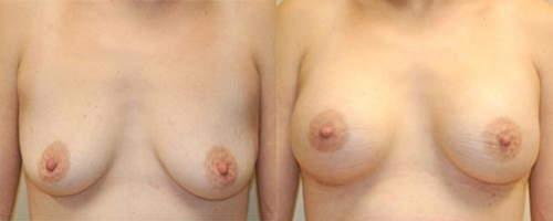 inguinal hernia during pregnancy